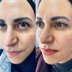 Antes y después Eliminación de ojeras