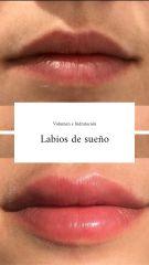 Aumento de labios - CLINICAS DH Clínicas Médico - Estéticas Zaragoza