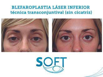 Blefaroplastia-589760