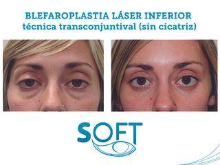 Blefaroplastia láser inferior_1
