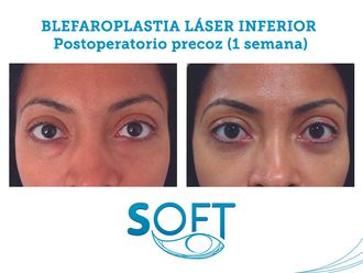 Blefaroplastia-589761