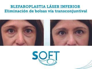 Antes y después Blefaroplastia transconjuntival