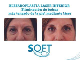 Antes y después Blefaroplastia láser inferior