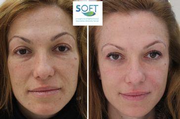 Eliminación de ojeras - Clínica Soft
