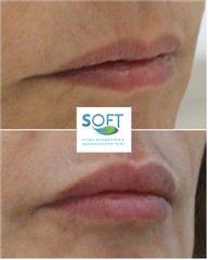 Aumento de labios - Clínica Soft