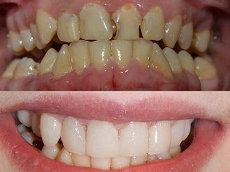 Ortodoncia - 516914