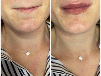Aumento labios-741255