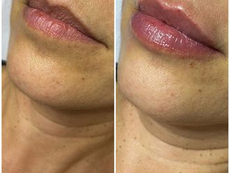 Aumento labios-741258