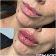 Aumento de labios - Muaqat Beauty