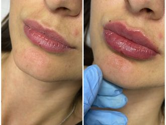 Aumento labios-741272