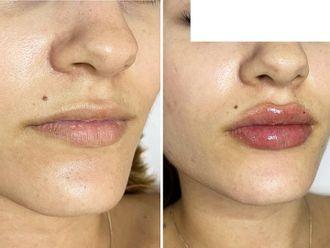 Aumento labios-741275
