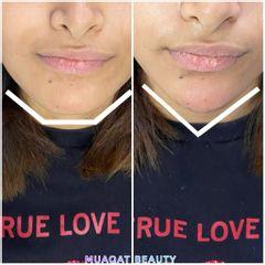 Aumento de mentón - Muaqat Beauty
