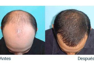 Dermatología-417146