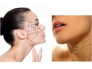 Rejuvenecimiento facial con hilos tensores de  PDO