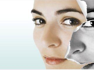 Rejuvenecimiento facial con pelings, Láser y luz pulsada intensa.