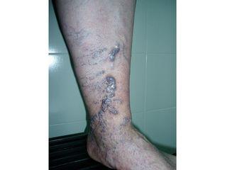 Tratamiento de varices con láser, esclerosis y espuma