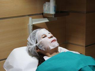 Rejuvenecimiento facial con ácido hialurónico