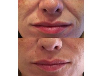 Rellenos faciales-496778
