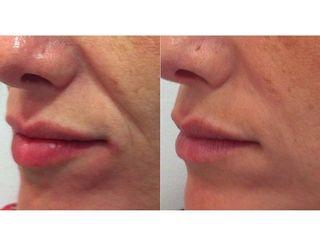 Antes y después Tratamiento Rellenos Dérmicos – Surcos nasogenianos