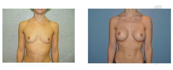 Antes y después Aumento de pecho