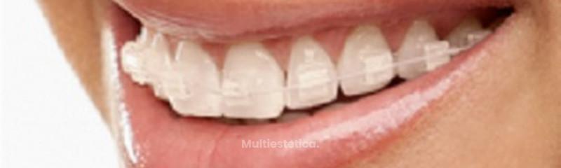 Dent Clínica Dental