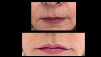 Aumento de labios - Grup Ciscar Clinic