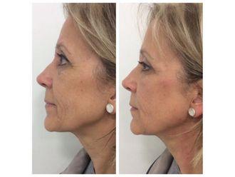 Rejuvenecimiento facial-740107