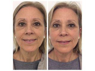 Antes y después Hidrolipoclasia - Salutissim Clinic