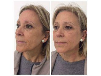 Rejuvenecimiento facial-740112