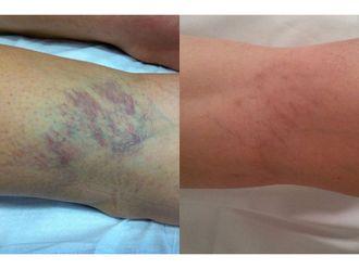 Tratamiento varices-740113
