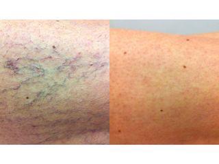 Antes y después Tratamiento varices - Salutissim Clinic