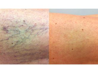 Tratamiento varices-740115