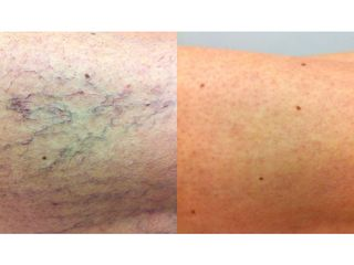 Tratamiento varices - Grup Ciscar Clinic