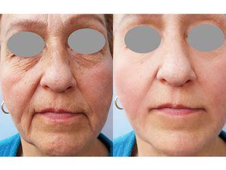 Rejuvenecimiento facial-740116