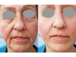 Rejuvenecimiento facial - Grup Ciscar Clinic