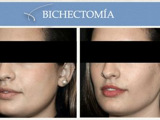 Bichectomía-662414