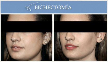Bichectomía - Clínica Espías-Alonso