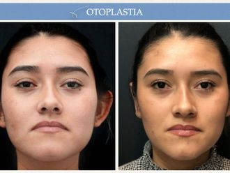 Otoplastia - 662419