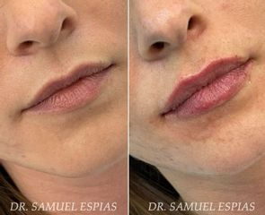 Aumento de labios - Clínica Espías-Alonso