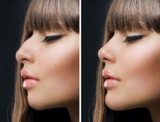 Antes y después. Rinoplastia