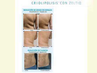 Criolipólisis - 354819