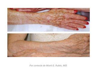 Lesiones de pigmentación