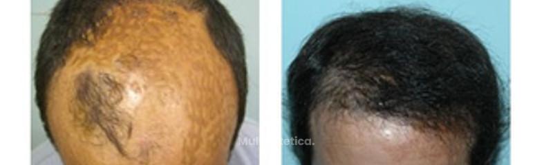 Alopecia grado III