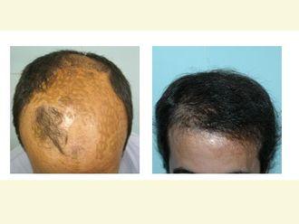 Alopecia-354851