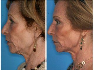 Antes y después Corrección de arrugas