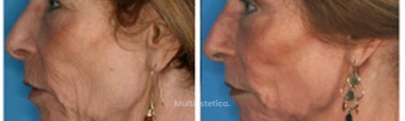 Corrección de arrugas