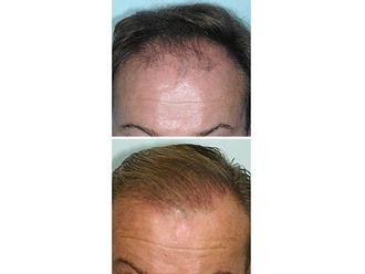 Alopecia-494669