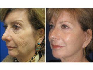 Antes y después Resurfacing