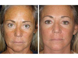 Rejuvenecimiento facial-494671