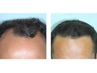 Antes y después Alopecia androgenética
